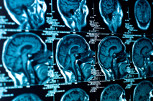 New Research Center Tackles Concussions